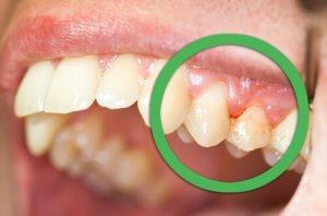 1-歯肉炎