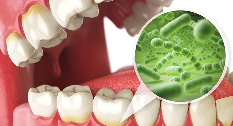 Какво представлява зъбният камък и защо е вреден?