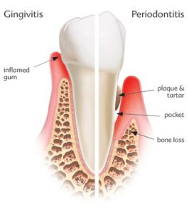 Oral Health Tooth diagram